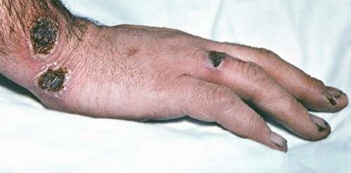 фото сибиреязвенного карбункула на кисти руки
