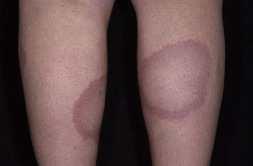 гранулема кольцевидная на ногах
