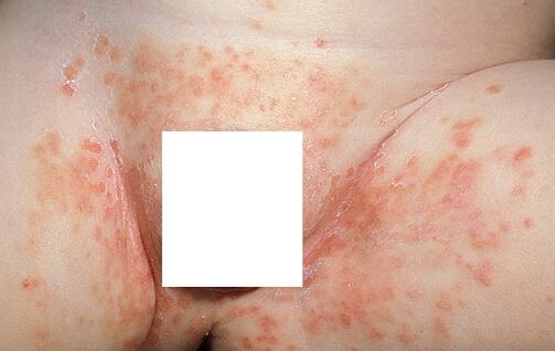 дерматит печеночный у новорожденного фото