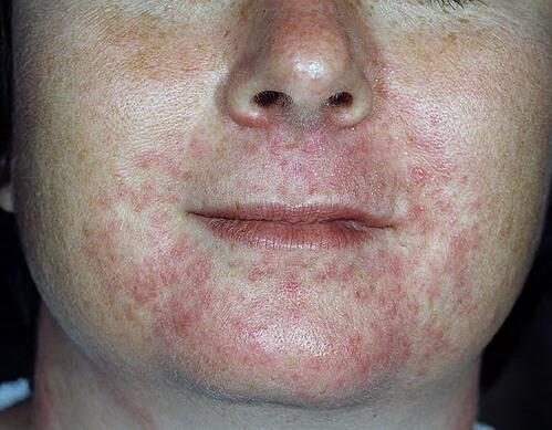 фото перорального дерматита на коже лица