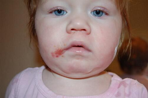 фото перорального дерматита у ребенка
