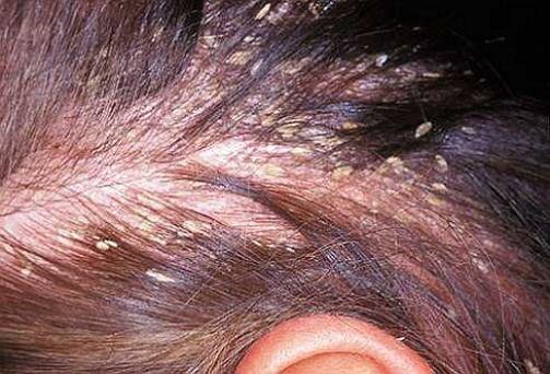 фото на голове себорейного дерматита