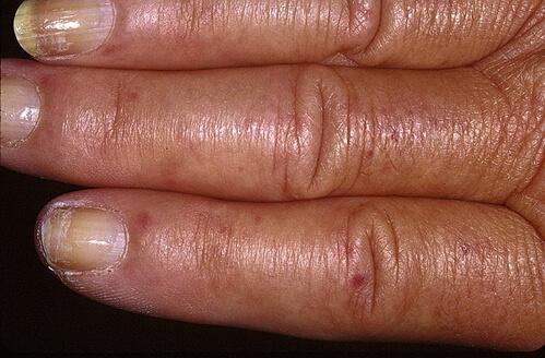 фото склеродермии на руках