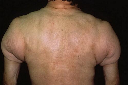 фото склеродермии