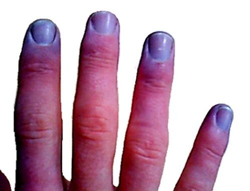 Цианоз кожных покровов свидетельствует о развитии