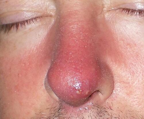 фото фурункула в носу