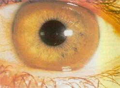болезнь вильсона фото