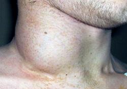 неходжкинская лимфома фото