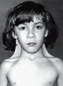 синдром шерешевского-тернера фото