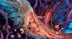 артериит фото