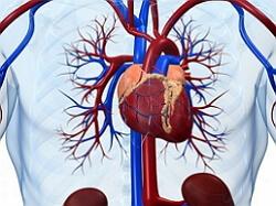 кардиосклероз фото