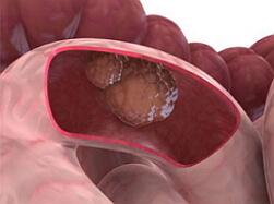 рак толстой кишки фото