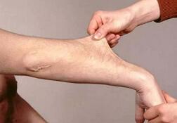 синдром элерса-данлоса фото