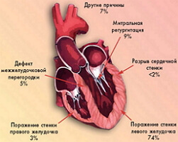 кардиогенный шок фото