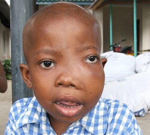 фото лимфомы у детей