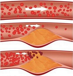 холестериновые бляшки фото
