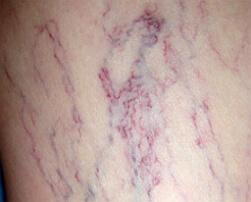 варикозная болезнь фото