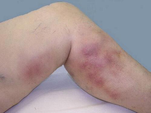 Флебит - симптомы, причины, фото, лечение флебита конечностей