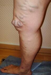 хроническая венозная недостаточность фото