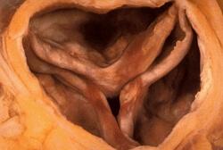 аортальный стеноз фото