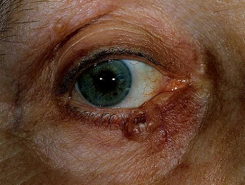фото базалиомы на глазу