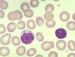 лимфоцитоз фото