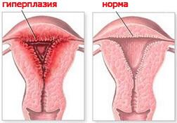гиперплазия эндометрия фото