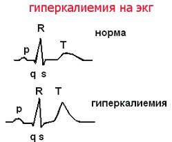 гиперкалиемия фото