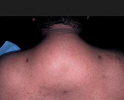 липодистрофия фото