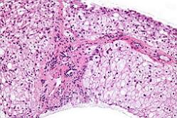 гликогенозы фото