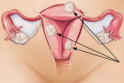 фибромиома матки фото