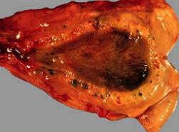холестероз желчного пузыря фото