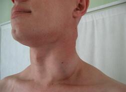 лимфаденопатия фото