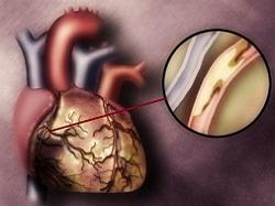 атеросклеротическая болезнь сердца фото