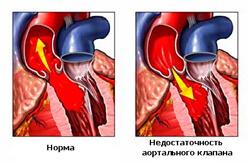 недостаточность аортального клапана фото