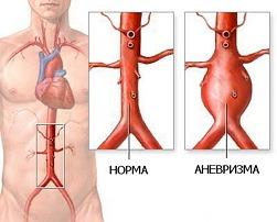 аневризма аорты фото