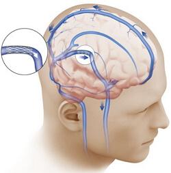 внутричерепная гипертензия фото