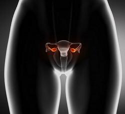 склерокистоз яичников фото
