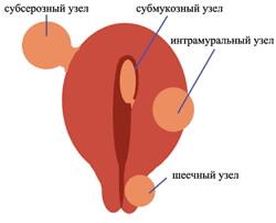 фиброматоз матки фото