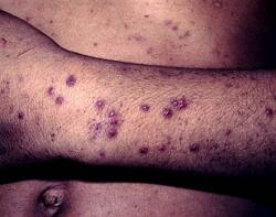 тромбоцитопеническая пурпура фото
