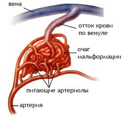 артериовенозная мальформация фото