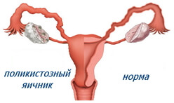 синдром поликистозных яичников фото