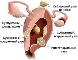 миоматозный узел фото