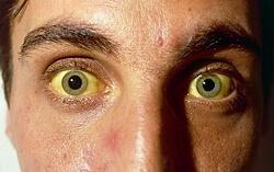 болезнь боткина фото