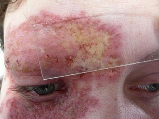 признаки поражения паразитами человека