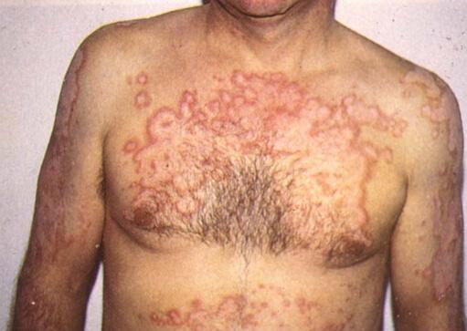 туберкулез кожи тела фото