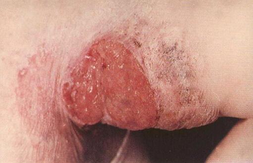 туберкулез кожи фото язвенной формы