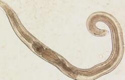 анкилостомидоз фото