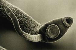 трематодозы фото