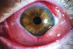 фото аденовирусной инфекции при поражении глаз